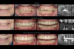 Full Mouth Rehabilitation with 10 Implants ZR