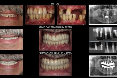 Full Mouth Rehabilitation with 10 Implants - case 1