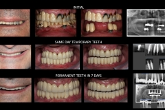 Full Mouth Rehabilitation with 10 Implants - case 3
