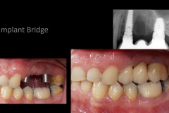 implant_bridge2_c03_en